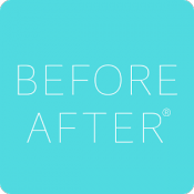 Androidアプリ「写真で顧客管理アプリ    BEFORE AFTER 【 ビフォーアフター】」のアイコン