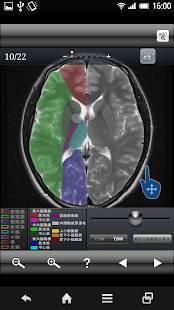 Androidアプリ「断面図ウォーカー脳MRI」のスクリーンショット 2枚目