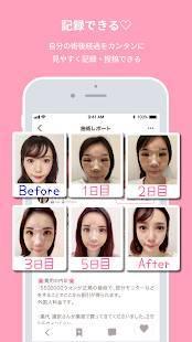 Androidアプリ「Meily(メイリー)美容医療・整形SNSアプリ」のスクリーンショット 5枚目