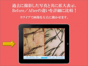 iPhone、iPadアプリ「TOWHEE - Scalp Camera App with Client Database」のスクリーンショット 2枚目