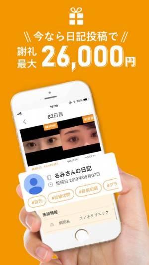 iPhone、iPadアプリ「あのね/美容整形の動画クチコミアプリ」のスクリーンショット 2枚目