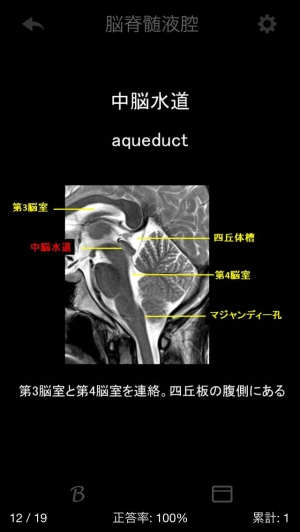 iPhone、iPadアプリ「e画像解剖」のスクリーンショット 4枚目