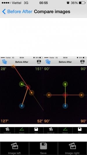 iPhone、iPadアプリ「リハビリ可動域計測&比較アプリ」のスクリーンショット 4枚目