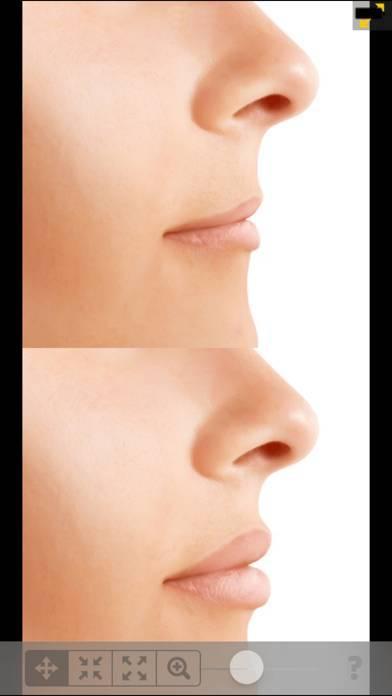 「顔と体の写真エディター Lite」のスクリーンショット 3枚目