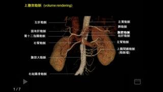 「e画像解剖」のスクリーンショット 3枚目