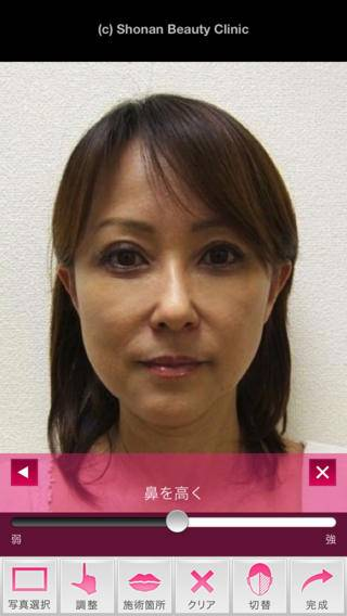 「SBC ミラクルシミュレーション By 湘南美容外科クリニック」のスクリーンショット 2枚目